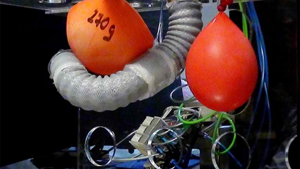 Un robot inspirat de caracatite vrea sa-ti faca urmatoarea operatie
