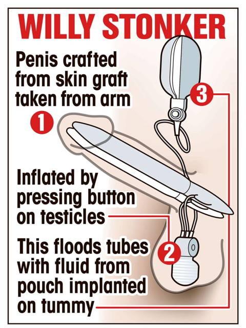Un barbat este primul posesor al unui penis bionic