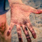 Cercetatorii au gasit o modalitate de a regenera pielea victimelor cu arsuri