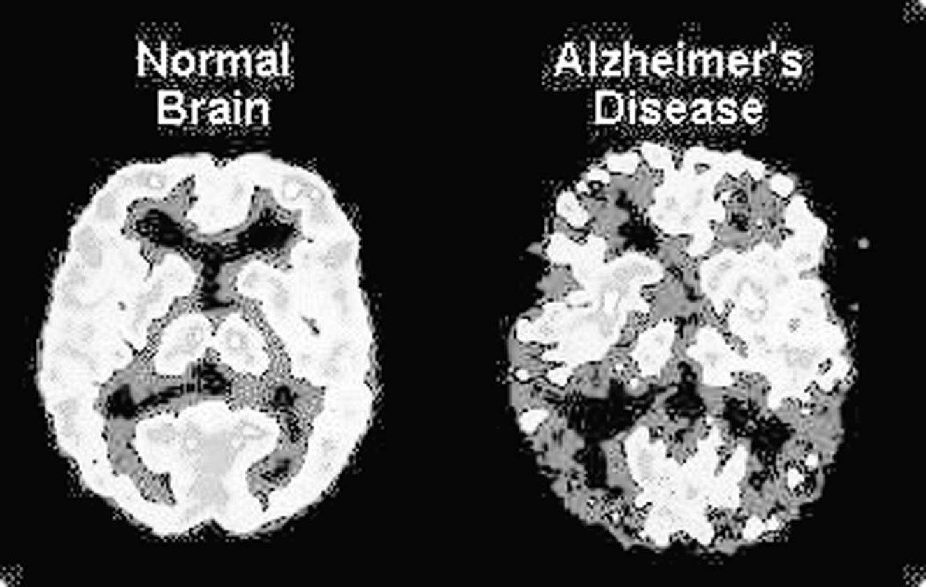 Inteligenta artificiala care poate detecta Alzheimer-ul cu 10 ani inainte
