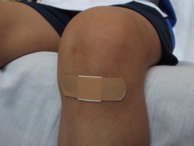 Cercetatorii creeaza un etansant chirurgical rapid pentru a inchide ranile