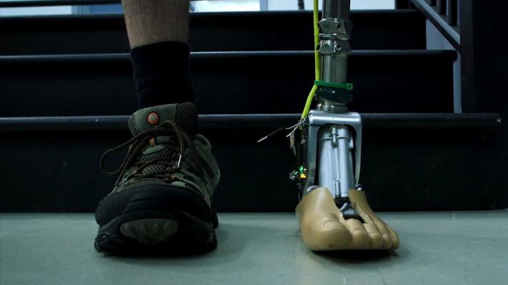 O proteza de picior se poate adapta la terenul neuniform