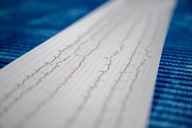 Cum ar putea fi reduse infarctele la oameni